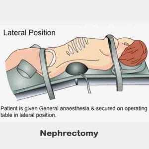 Surgical Removal Of Kidney Or Nephrectomy