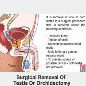 Surgical Removal of Testis or Orchidectomy